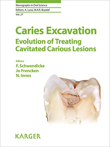 Caries Excavation Evolution of Treating Cavitated Carious Lesions (Monographs in Oral Science, Vol. 27)